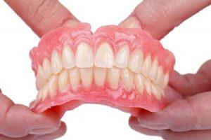 răng nhựa tháo lắp