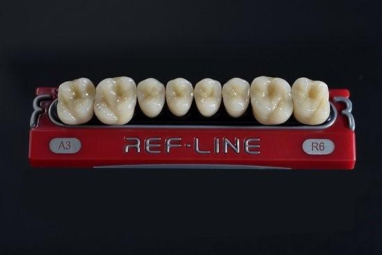 Răng Ref-Line